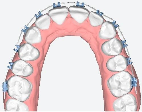Yapay Zeka, Robotik Tel Büküm ve 3D Printer Teknolojilerini Ortodonti Bilimi İçin Bir Araya Getirdik
